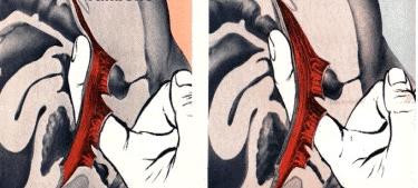 Suelo pélvico - fisioterapia - PHYSIO Clínica d'Osteopatia i Fisioteràpia