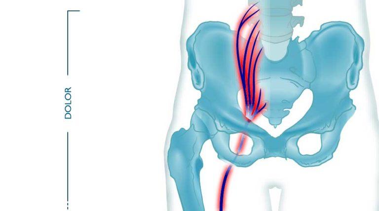 dolor de ciatica tractament