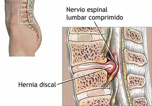 La hernia discal y su compresión del nervio lumbar