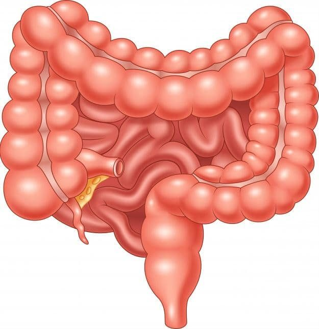 Colon irritable