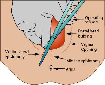 seqüeles d'una episiotomia