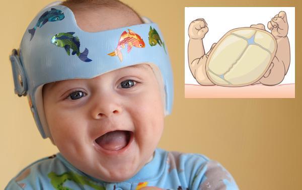 plagiocefalia postural del bebe
