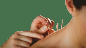 acupuntura girona